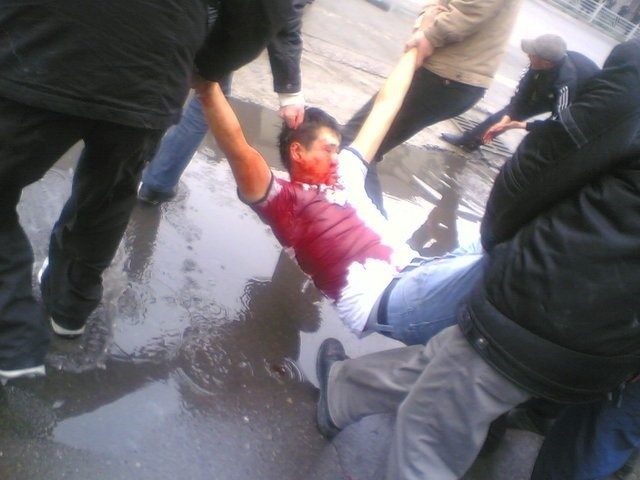A protester is badly wounded as the police use sni