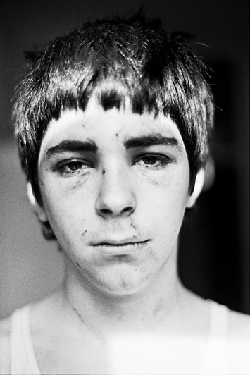 Smiler, Self Portrait after NF Beating, 1980 C-Pri
