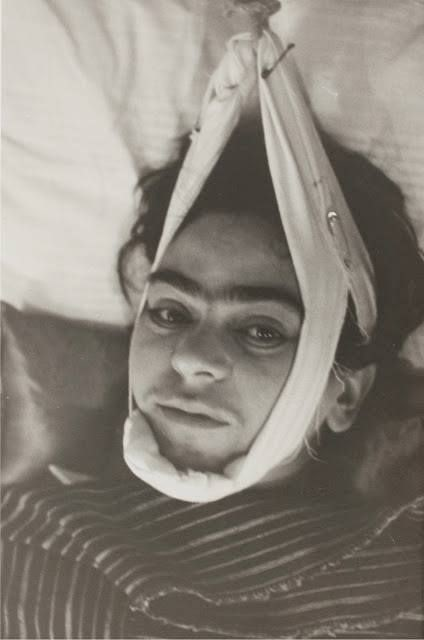 Frida Kahlo recovering from tram crash
