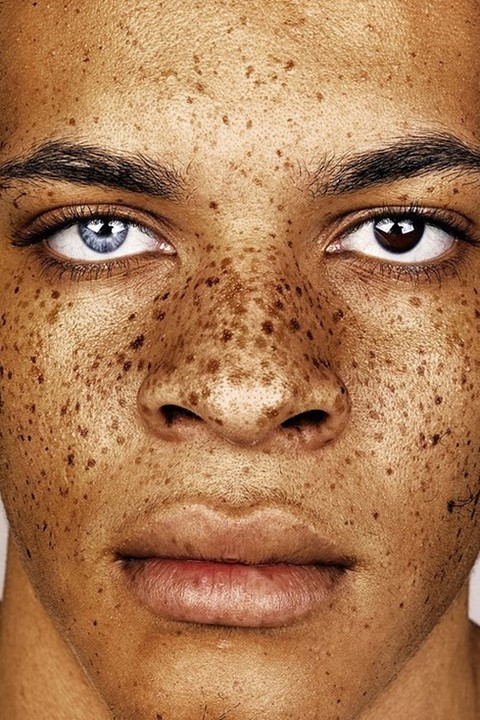 Exploring the beauty and shame of freckles
