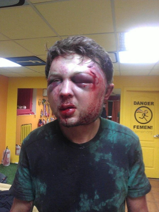 Victor Svyatski beaten up by police