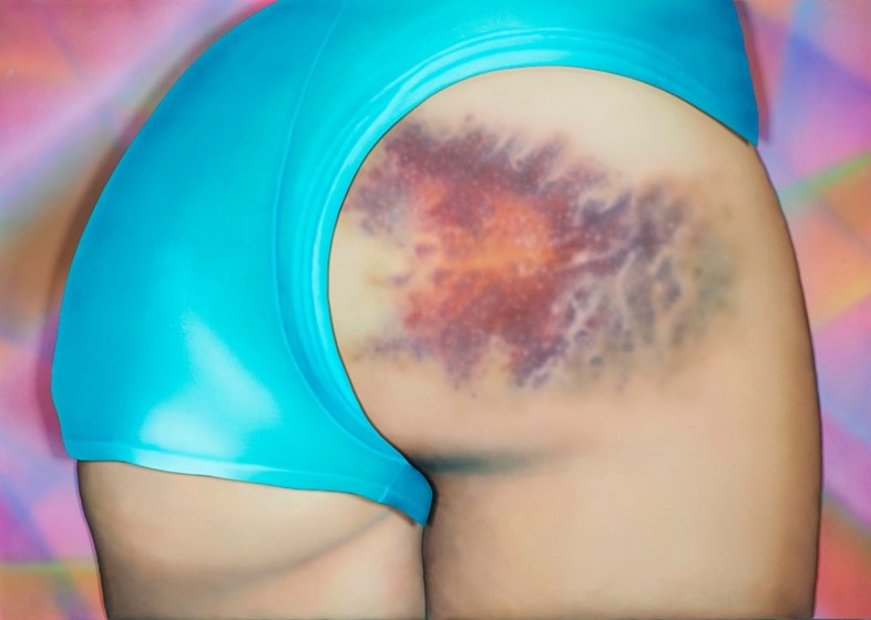 Riikka Hyvönen 'I got a really beautiful bruise',