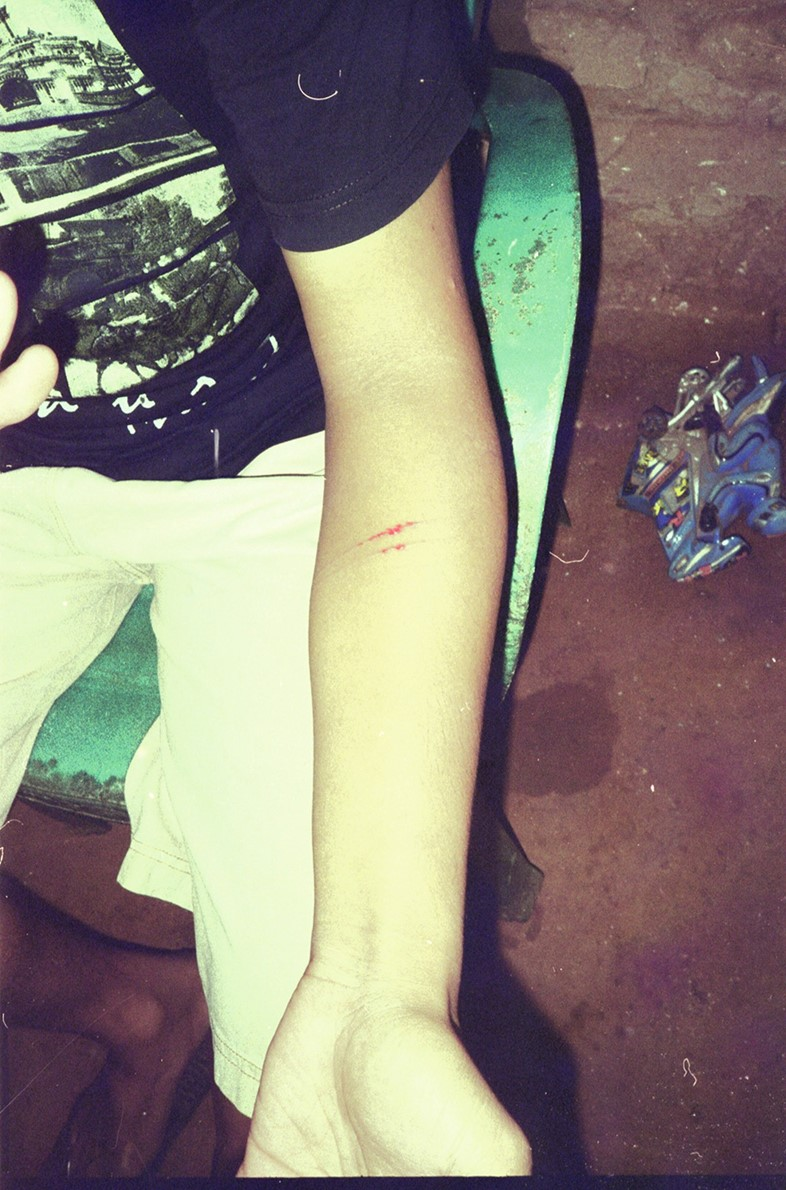 The arm of a man is slashed by a Madura dukun, yet